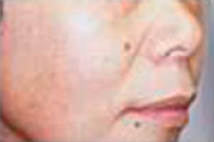 顔全体のリフトアップ、ハリ(ハイフスタンプ使用後)
