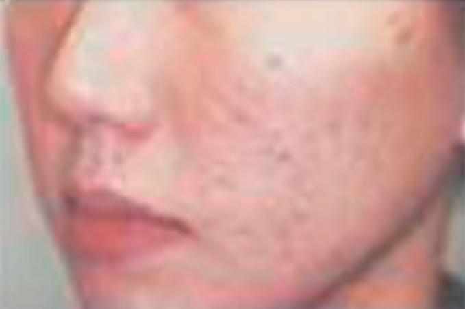 ニキビ痕の改善、毛穴ケア(ハイフスタンプ使用前)