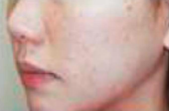 ニキビ痕の改善、毛穴ケア(ハイフスタンプ使用後)