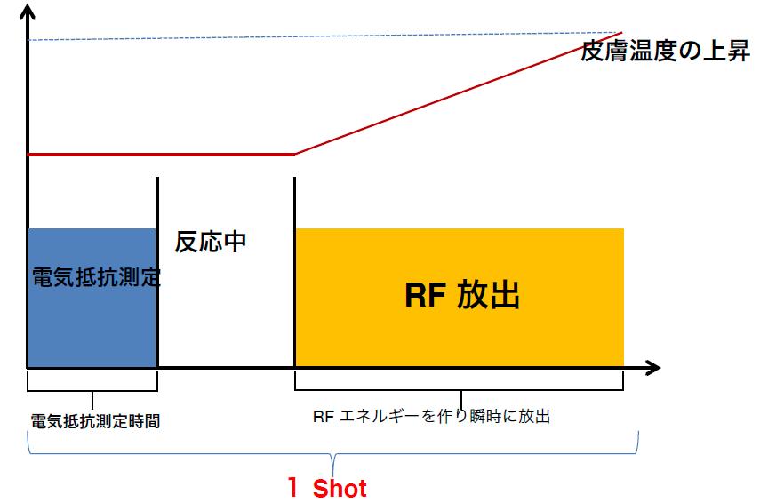 ウナリックスの測定システム